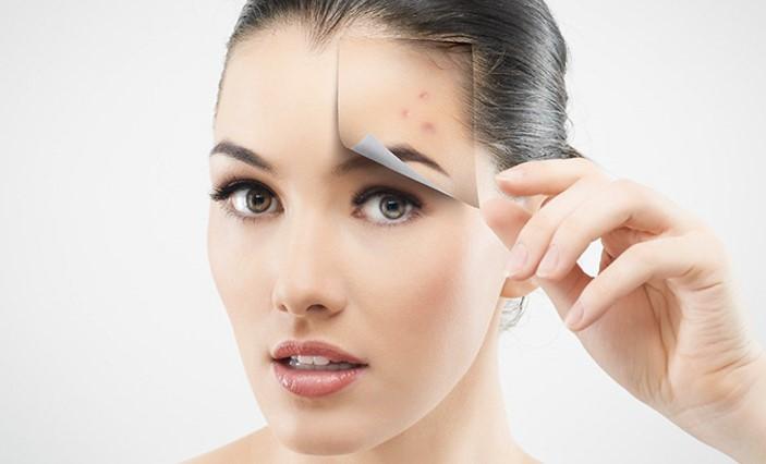cicatrici-da-acne